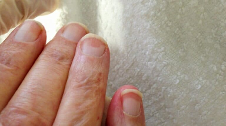 His Fingernails Have been Purple however Didn't Harm. What Was This?