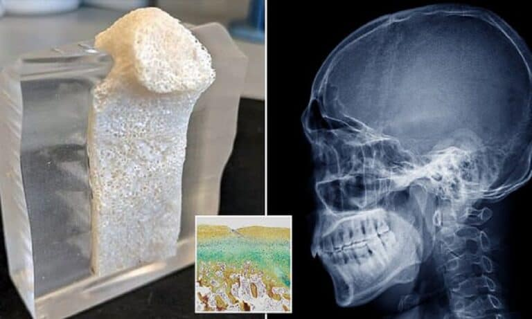 Scientists Synthesize Jawbones From Pig Fats