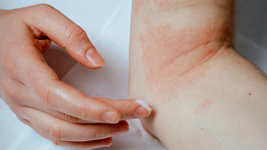 A Simple Guide to Eczema Treatment