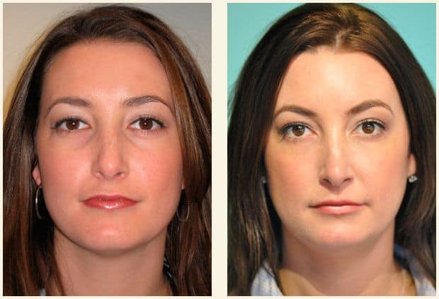 Tear trough fillers before and after